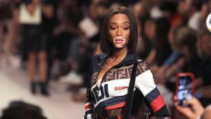 La modelo canadiense Winnie Harlow luce una creación de la firma Fendi durante la Semana de la Moda en Milán (Italia)