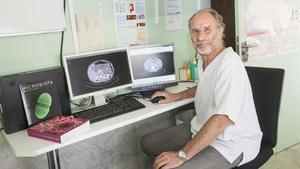 Francisco Guarner, digestólogo del Hospital Vall d'Hebron, muestra unos TAC donde se ve el intestino de un paciente.