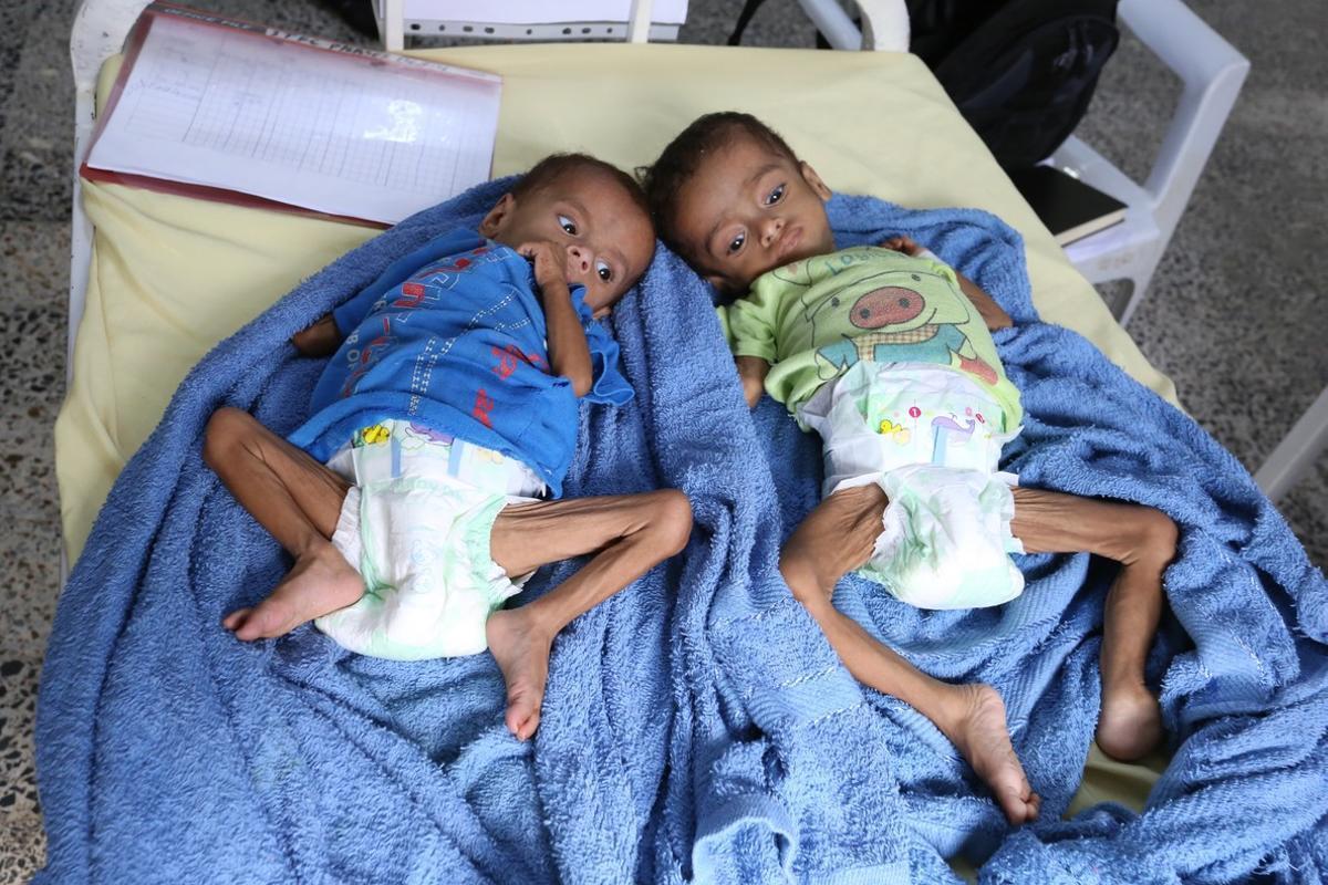 Dos niños que sufren diarrea y anemia son atendidos en un centro sanitario en Yemen.