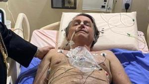 Bolsonaro respon al tractament de l'oclusió intestinal