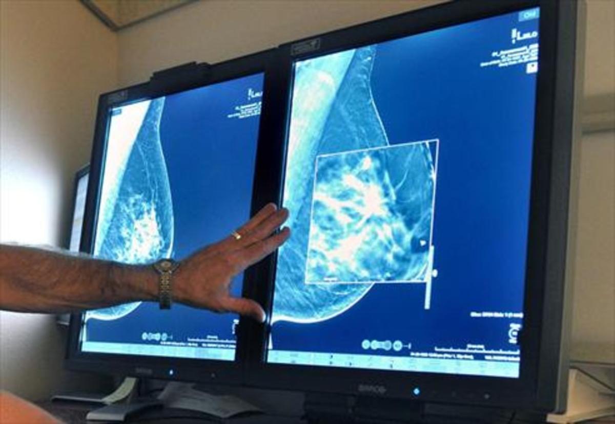 Un radiólogo compara dos mamografías para detectar tumores.
