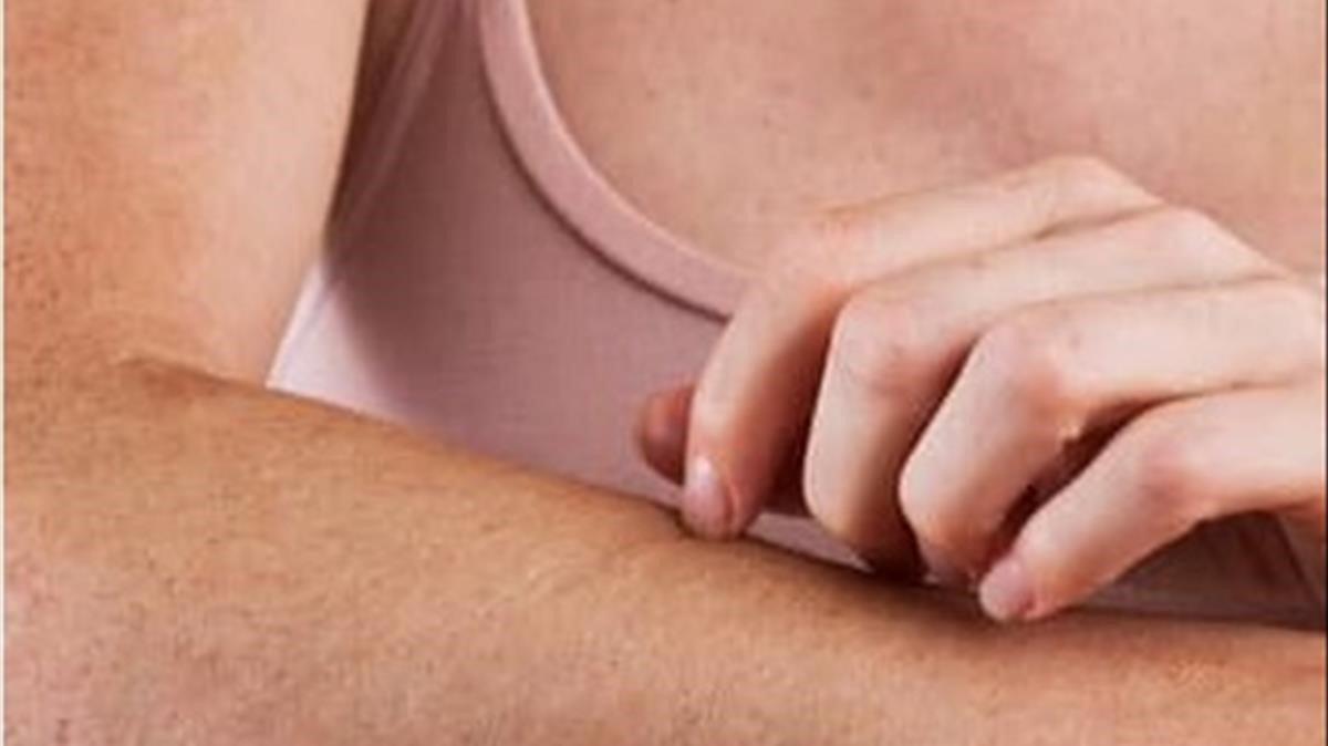 ¿Com es poden calmar les molestes irritacions de l'estiu a la pell? Et donem la solució
