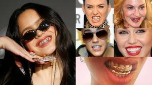 Rosalía y el bling-bling dental
