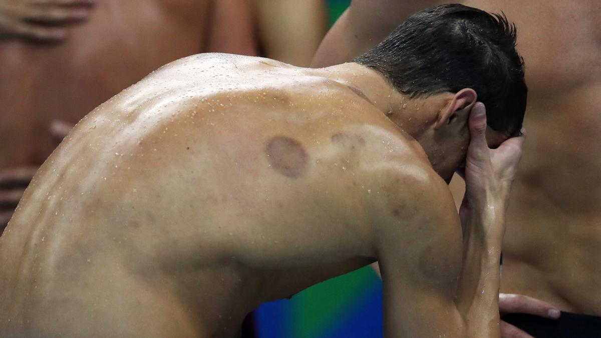 Ocho deportistas que tuvieron que interrumpir su carrera por problemas de ansiedad o depresión