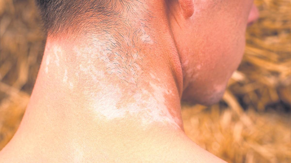 Las manchas en la piel son el resultado de la diferente alteración de la melanina y las células que la producen, los melanocitos
