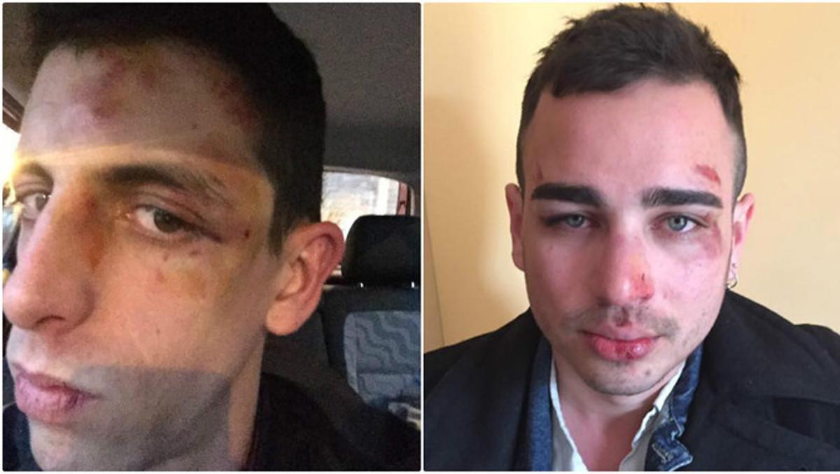 Imagen de los agredidos, que muestran las heridas del ataque sufrido en Berga.