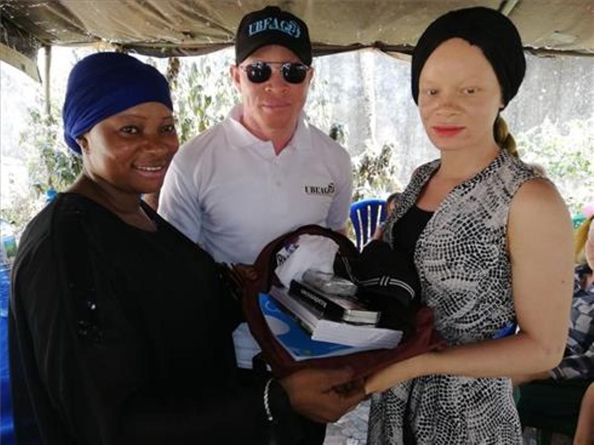 Guinea se convierte en el primer país del mundo en aprobar una ley específica para la promoción y protección de los albinos.