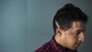 Alexander Oñoz, se muestra orgulloso de su cicatriz en la cabeza. He logrado salir adelante, explica.