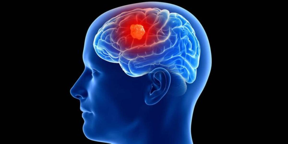 Día Internacional de los Tumores Cerebrales ¿Cuáles son los signos de la presencia de un tumor?