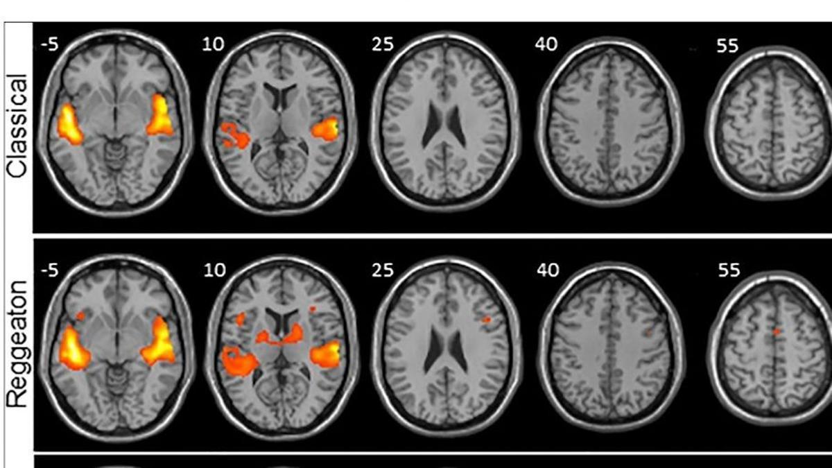 El reguetón provoca mayor actividad cerebral que escuchar clásica o folclore