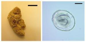 Coprolito donde se ha encontrado la muestra (izquierda) y huevo de la lombriz Toxascaris leonina (derecha).