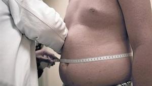 Un médico mide el perímetro abdominal de un hombre que sufre obesidad.