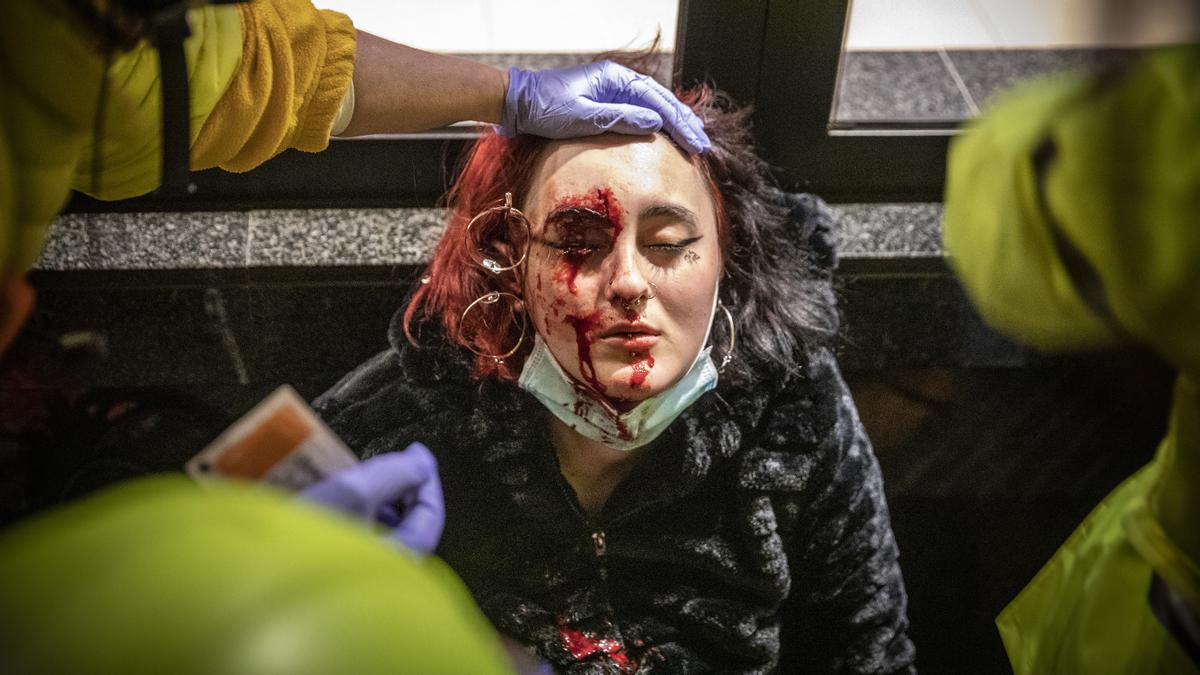 La joven herida por el proyectil de 'foam'.