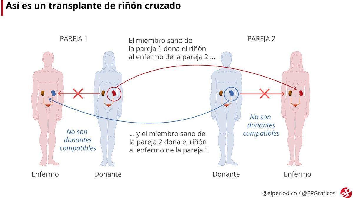 Tres hospitales culminan una cadena de 3 trasplantes cruzados de riñón