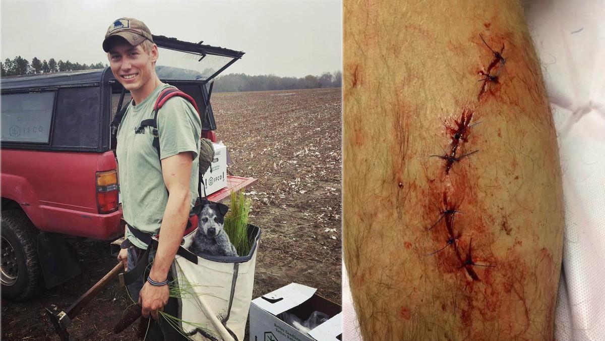 A la izquierda, Dylan McWilliams, el joven de 20 años que ha sobrevivido a los ataques de una serpiente, un oso y un tiburón. A la derecha, los siete puntos de sutura que recibió tras el ataque del tiburón, hace una semana.