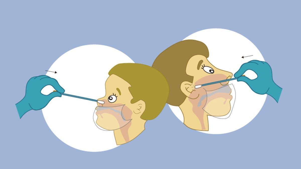 Viñetas explicativas de cómo se hace una PCR.