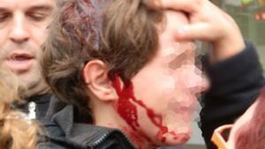 Foto del menor herido en Tarragona el pasado 14 de noviembre.
