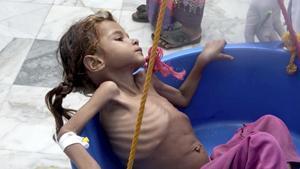És l'hora del Iemen