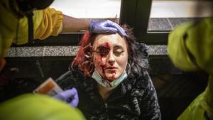 La joven herida en un ojo en los altercados de Via Augusta.