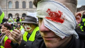 Loschalecos amarillos, con heridas falsas en los ojos, durante una manifestación.