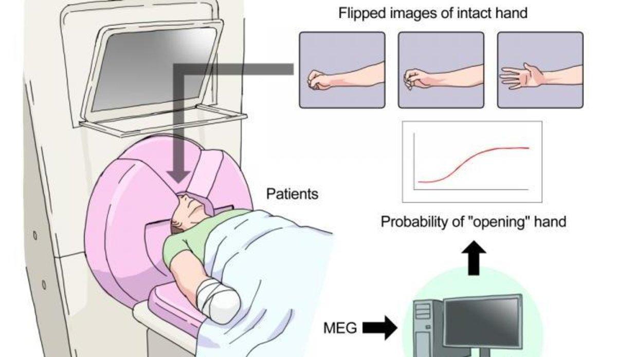 El cerebro se puede manipular para reducir el dolor del miembro fantasma