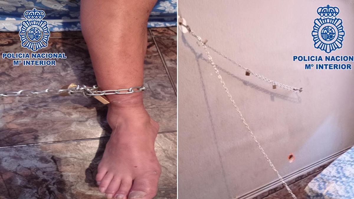 Detalles de las cadenas y del pie de una de las personas retenidas.