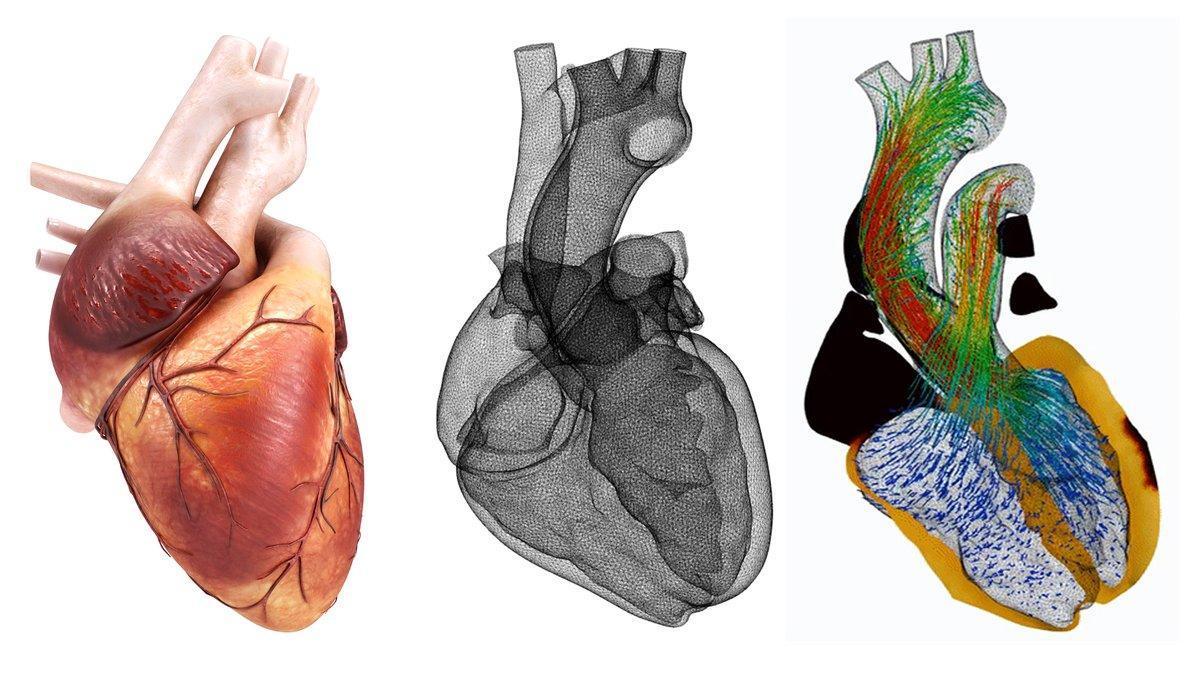 Imagen de un corazón humano al lado deuna recreación de la malla cardíaca y una simulación de un órgano sano, ambas ideadas por el equipo Alya Red
