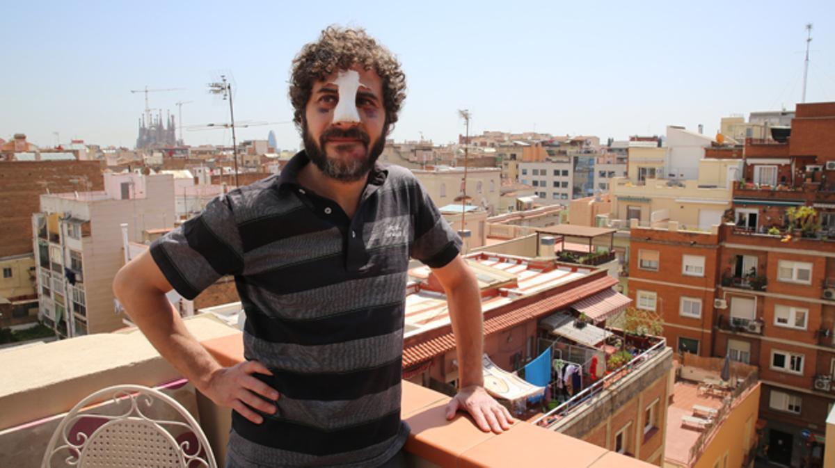 Tarek Ryan un vecino del barrio de Gràcia que al recriminar a unos hombres que hacían mucho ruidode madrugada sufrió una brutal agresión por un individuo que dijo ser soldado americano.