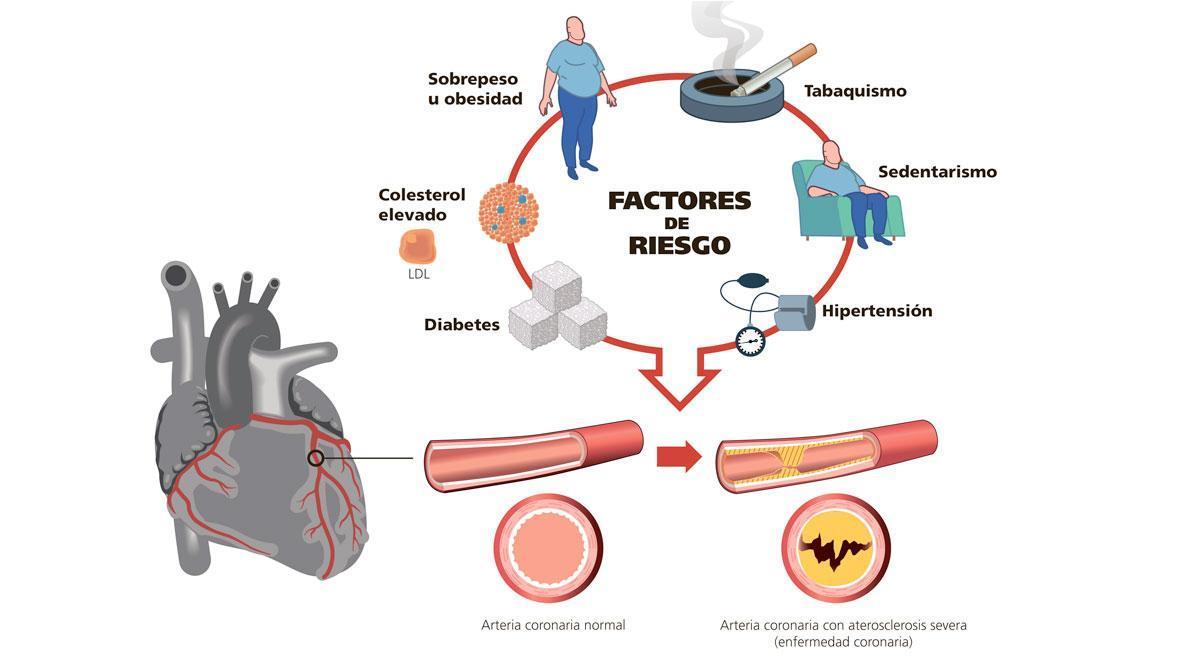 Factores de riesgo para sufrir una enfermedad coronaria