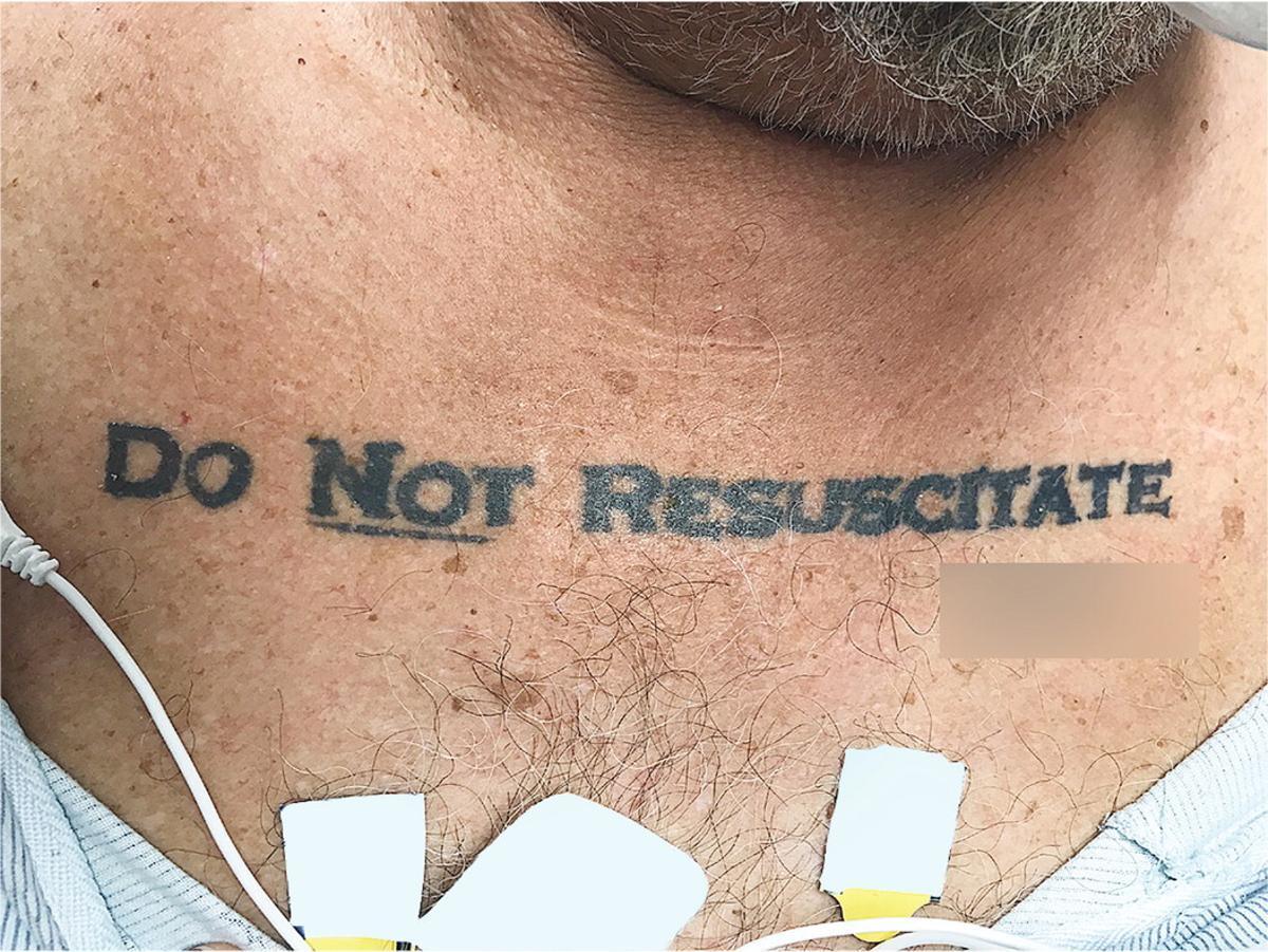 Un tatuaje de 'no resucitar' abre un debate médico