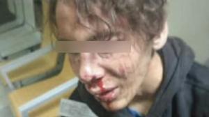 Investigada una agresión policial a un menor esposado en Melilla
