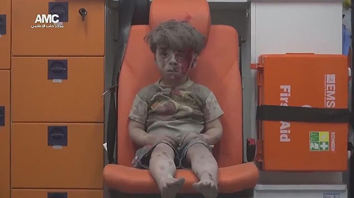 Un niño sirio que sobrevive a un bombardeo aguarda en una ambulancia.