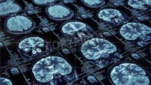 Imágenes de escáner de un cerebro.