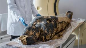 La momia embarazada, lista para ser sometida a un examen de rayos X en un centro médico en Otwock, localidad cercana a la capital polaca Varsovia, el 15 de diciembre de 2015.