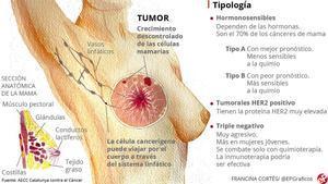 Definidos nueve genes que aumentan el riesgo de cáncer de mama