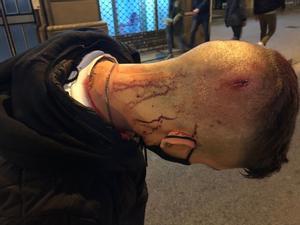 Ferida al cap d'un jove a la zona de Gràcia, el 20 de febrer, durant els disturbis posteriors a les protestes per Pablo Hasél