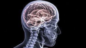 La Sanitat nord-americana edita una guia per distingir l'Alzheimer d'un tipus de demència