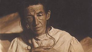 La paciente Auguste Deter, en una imagen de 1902 de la historia clínica elaborada por Alois Alzheimer.