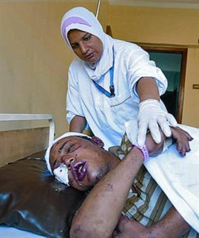 Un simpatizante de Mursi, en el hospital.