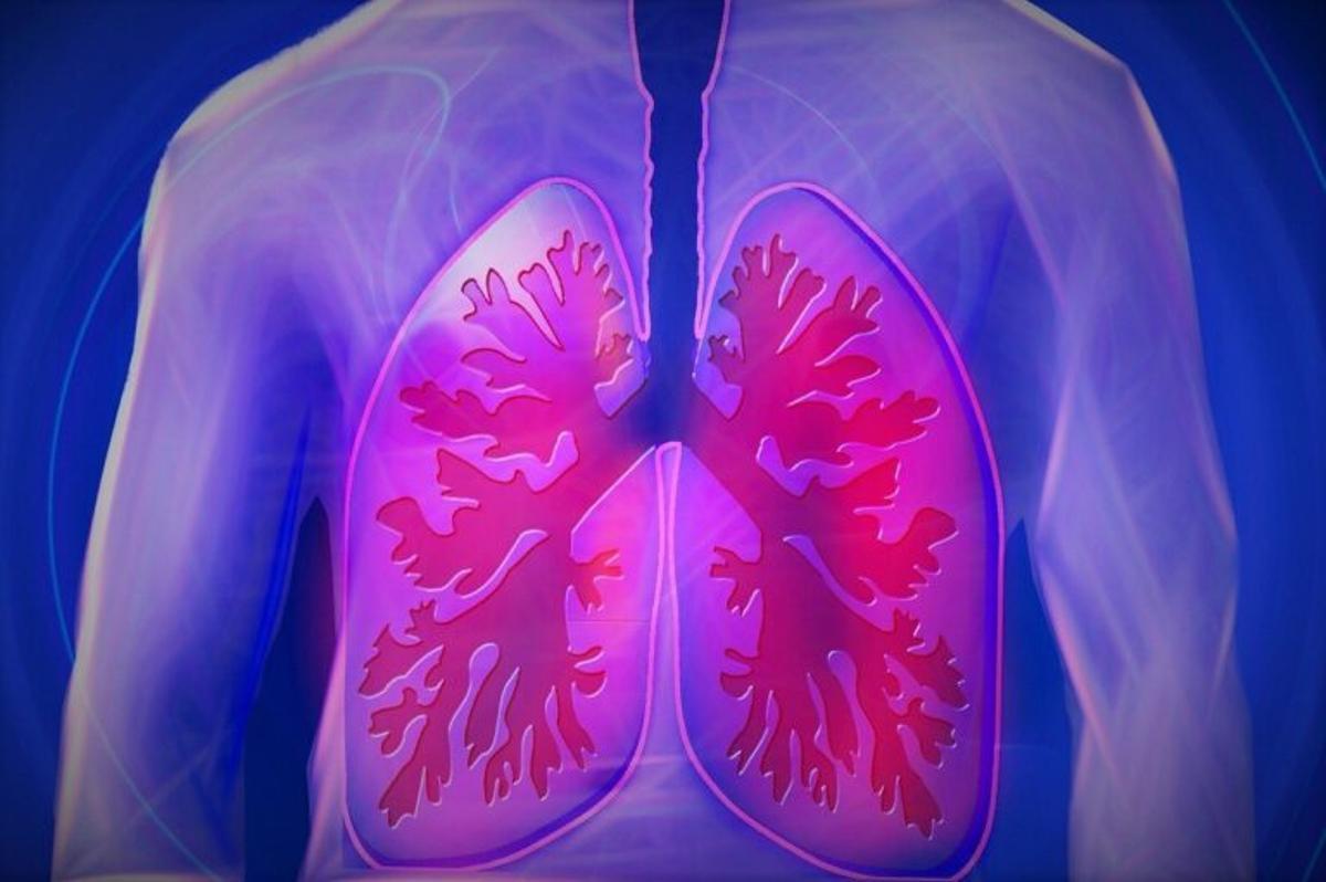 ¿Qué es la hipertensión arterial pulmonar?