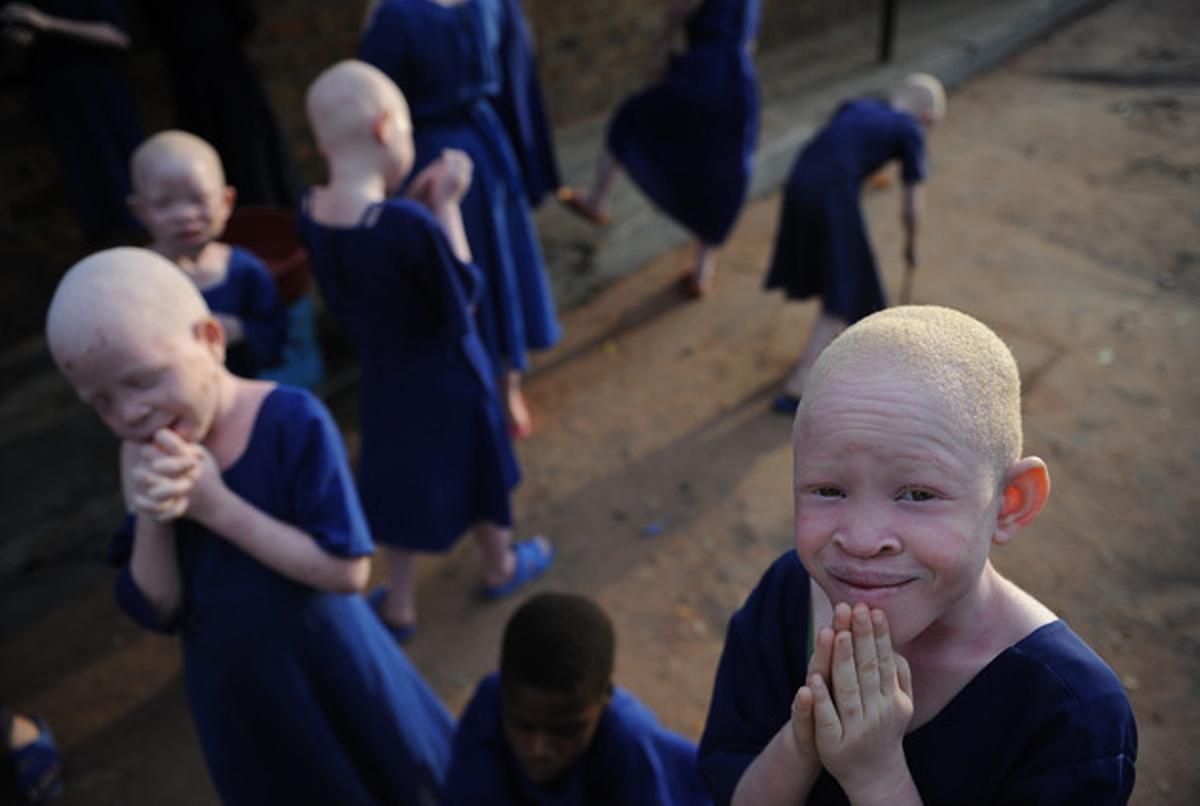 Centro donde se aloja y protege a niños albinos en Tanzania.