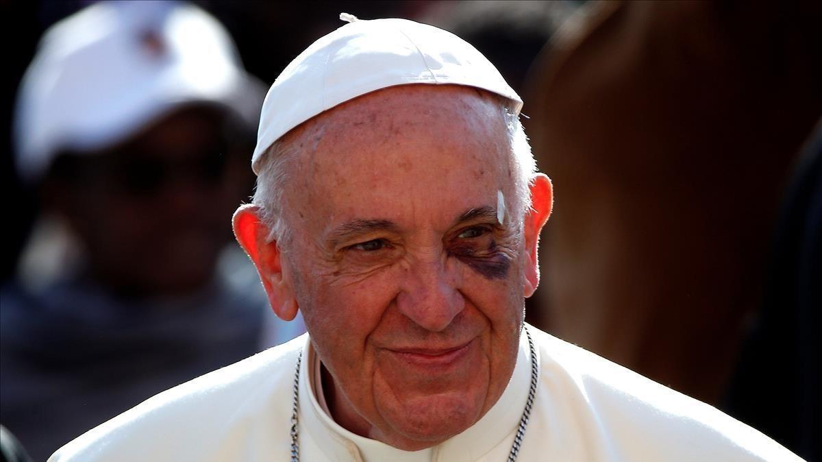 El moratón del Papa Francisco