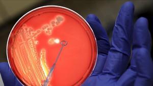 Un investigador examina una colonia de bacterias, en una imagen de archivo