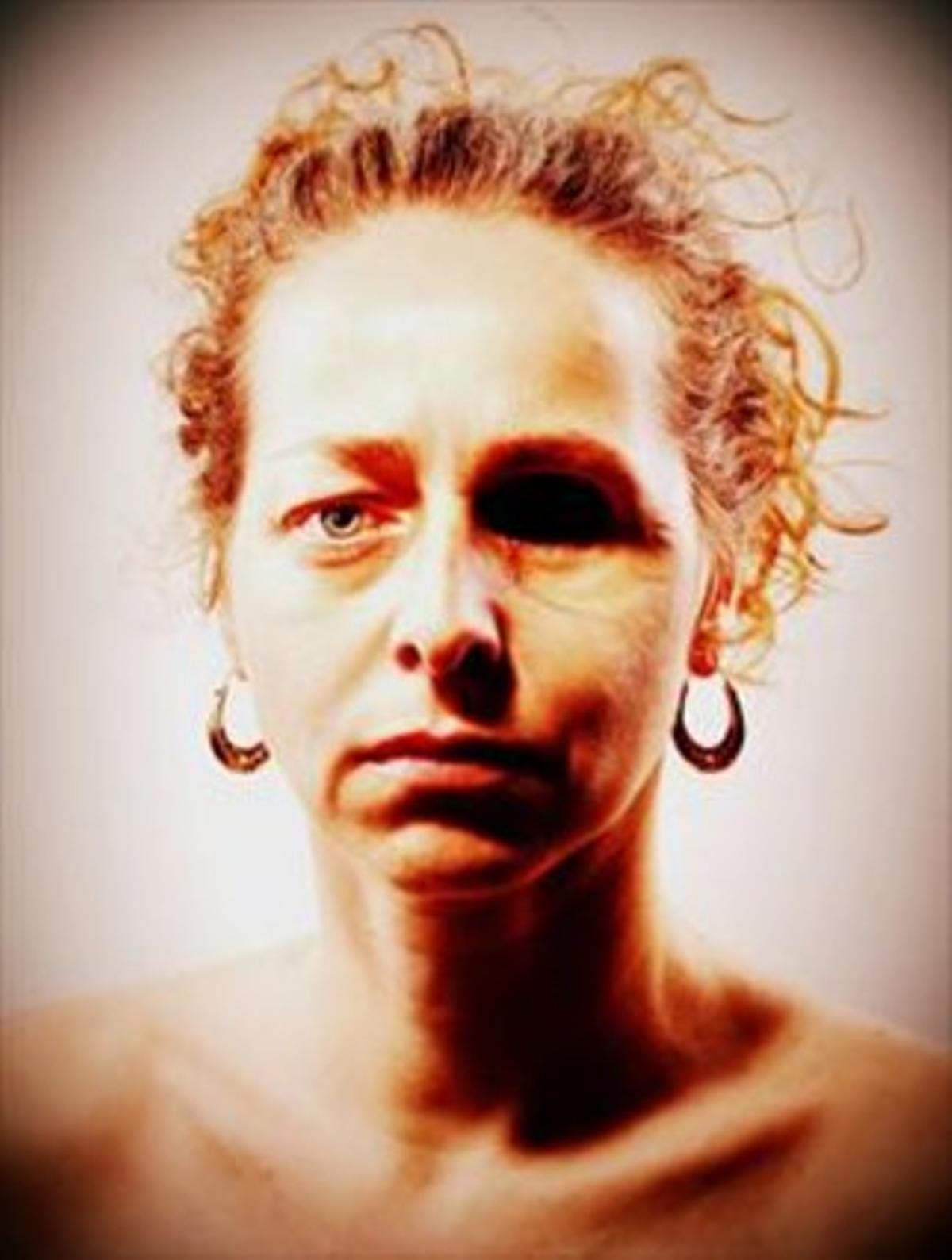 Ester Quintana va penjar en el seu Facebook una foto de la seva cara en la que mostra la seva mutilació.