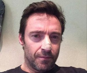 Hugh Jackman publicó esta imagen en su cuenta de Facebook,cuando se le disgnosticó el primer carcinoma en la nariz, en el 2013