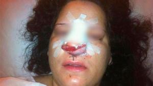 Imagen aportada por la joven que presentó la denuncia contra la Policía de Córdoba.