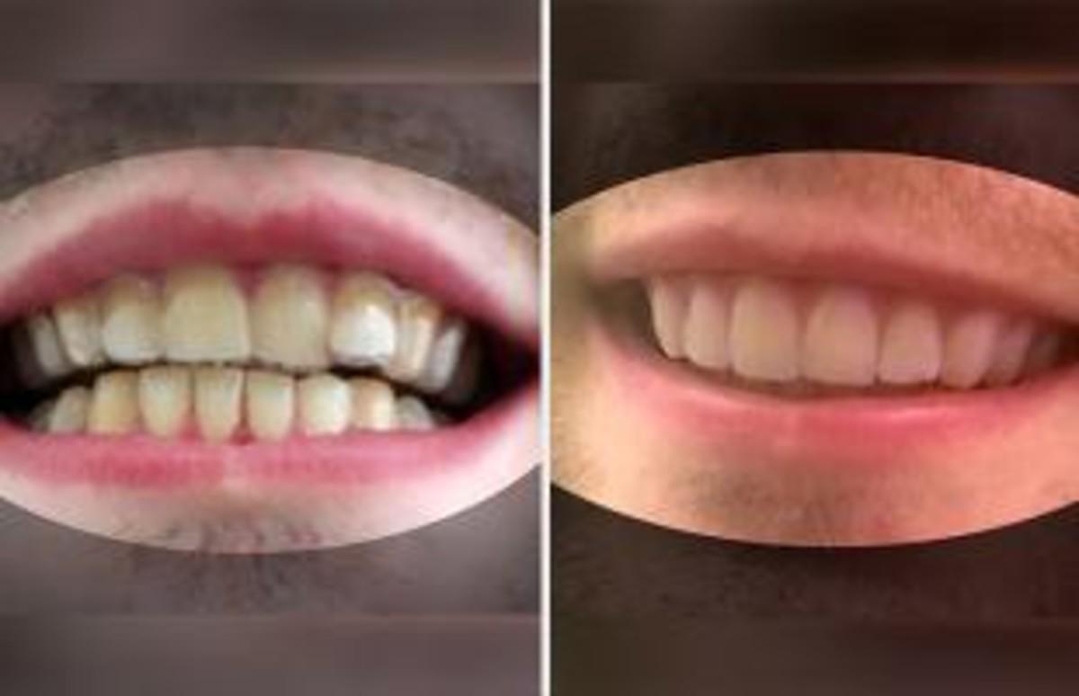 Un estudiant crea un corrector que arregla les dents per 53 euros