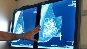 Un radiólogo compara mamografías hechas en 2D y en 3D.
