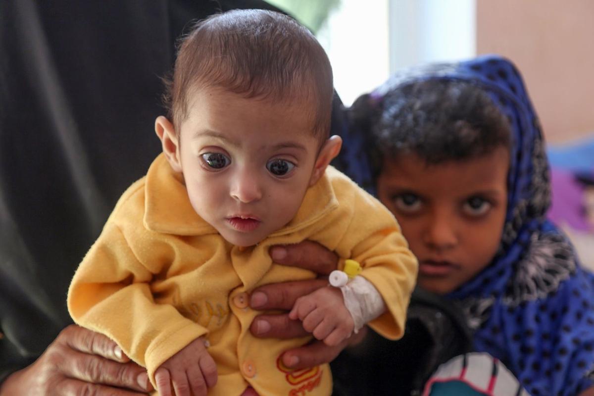 Una mujer aguanta un niño malnutrido en un centro sanitario en la ciudad de Taiz, Yemen.