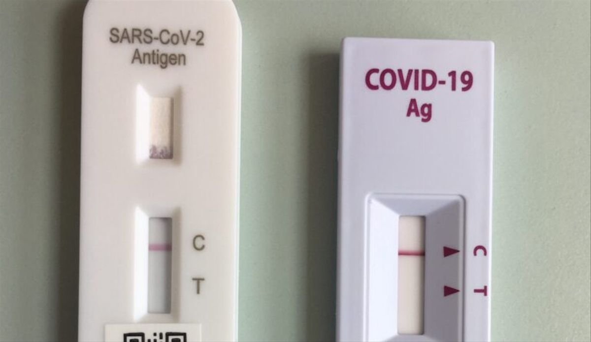 Dos tests de coronavirus